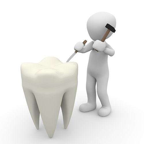 implantologia dott moriconi dentista torrimpietra